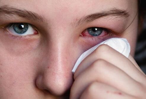 Hình ảnh người bị đau mắt đỏ