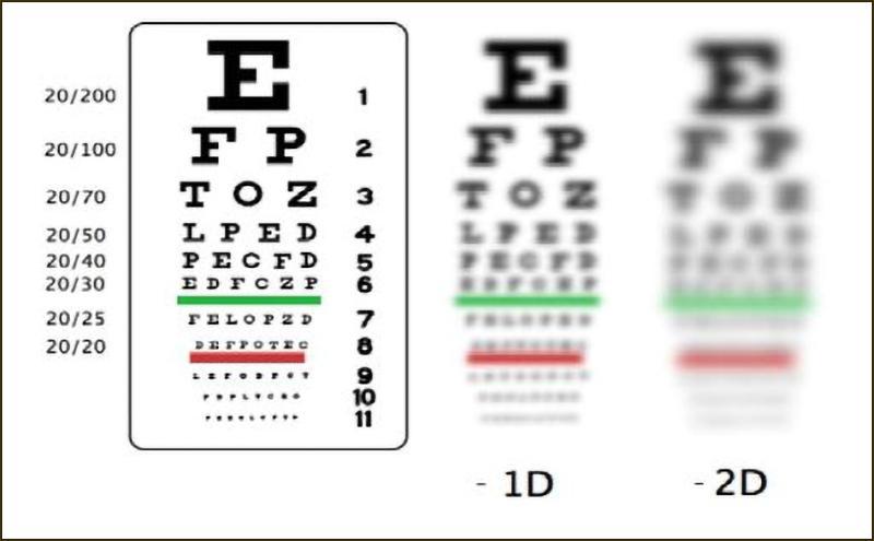 Bảng đo độ cận thị